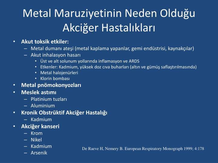 Metal Maruziyetinin Neden Olduğu Akciğer Hastalıkları