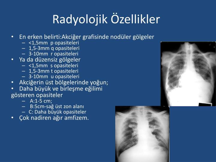 Radyolojik Özellikler