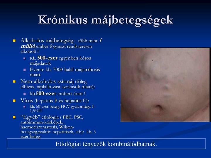 Krónikus májbetegségek