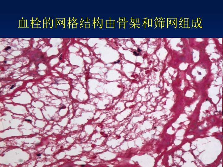 血栓的网格结构由骨架和筛网组成