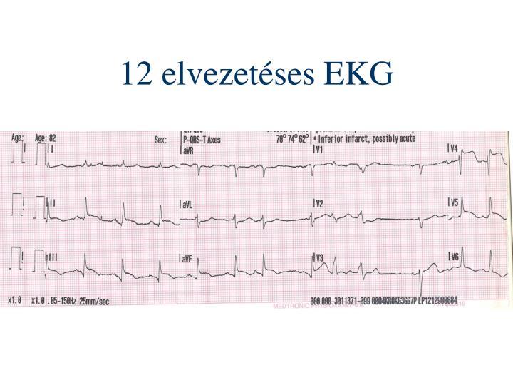 12 elvezetéses EKG