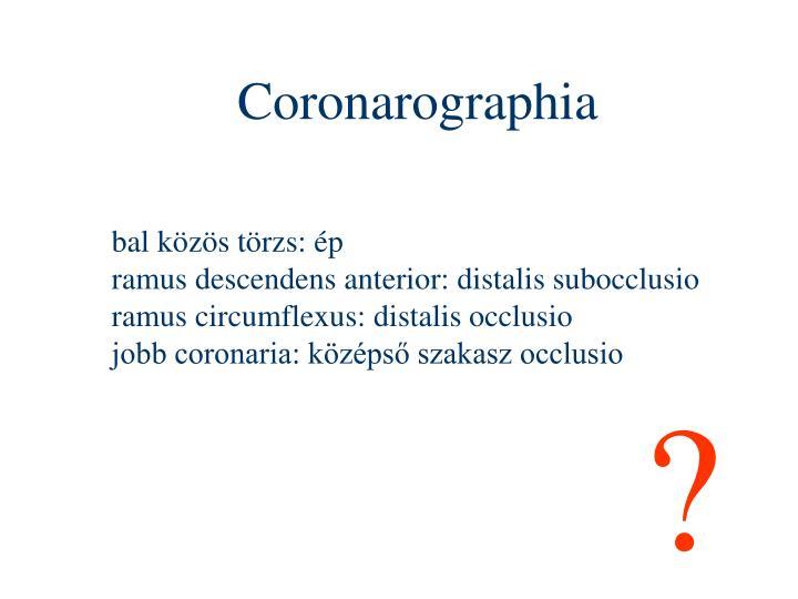 Coronarographia
