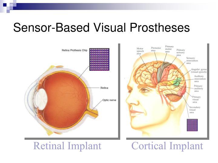 Sensor-Based Visual Prostheses