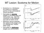 mt lesion scotoma for motion