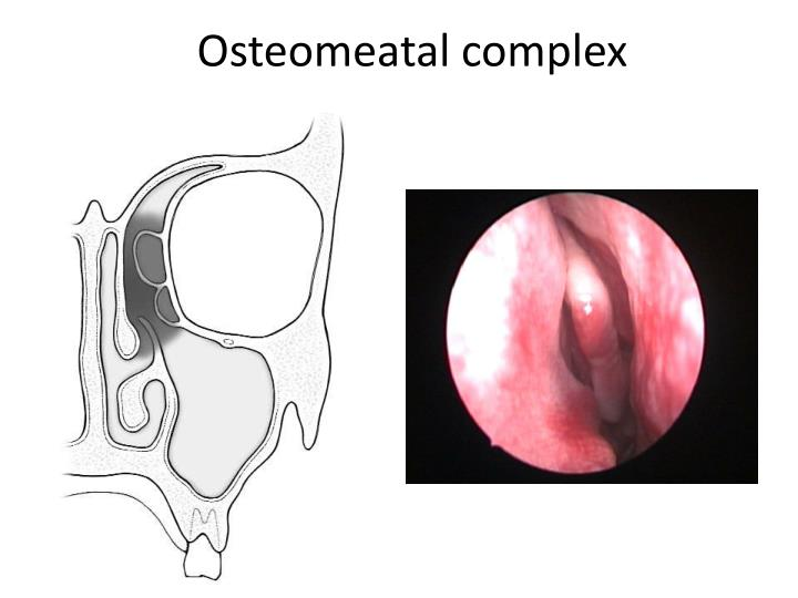 Osteomeatal complex
