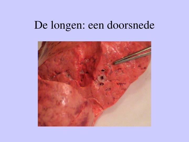 De longen: een doorsnede