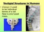 vestigial structures in humans1