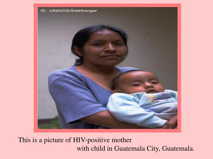 This is a picture of HIV-positive mother
