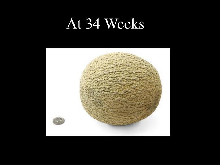At 34 Weeks