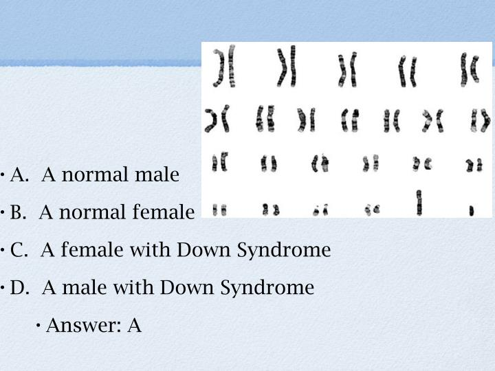 14.  What does the karyotype below correspond to?