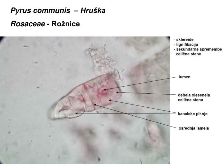 Pyrus communis  – Hruška