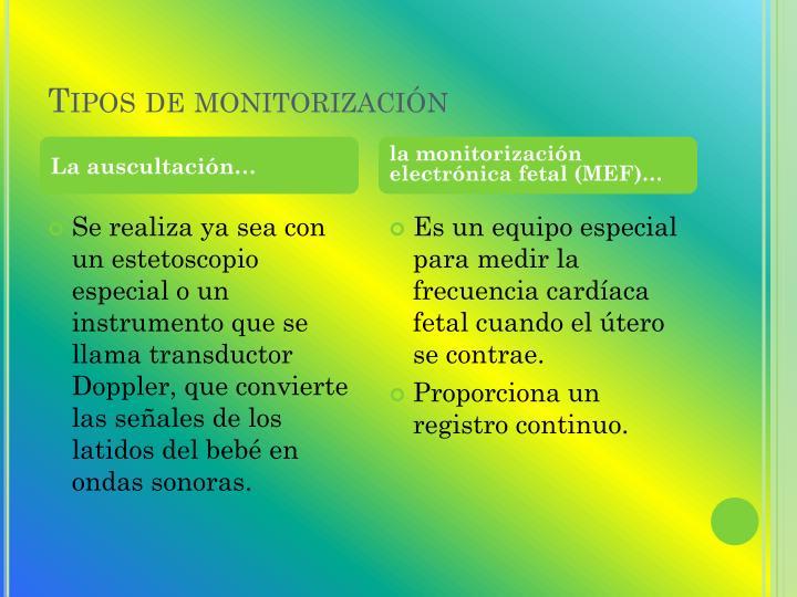 Tipos de monitorización