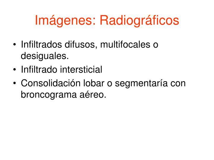 Imágenes: Radiográficos