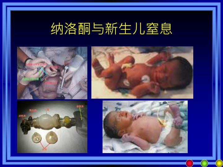 纳洛酮与新生儿窒息