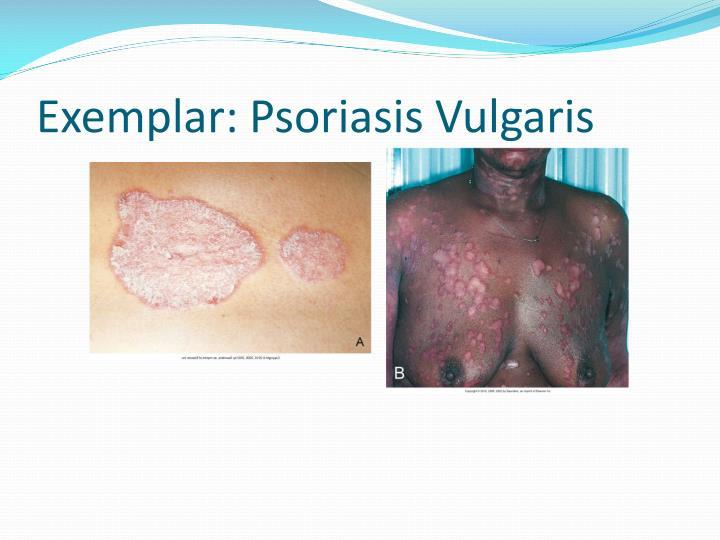 Exemplar: Psoriasis Vulgaris
