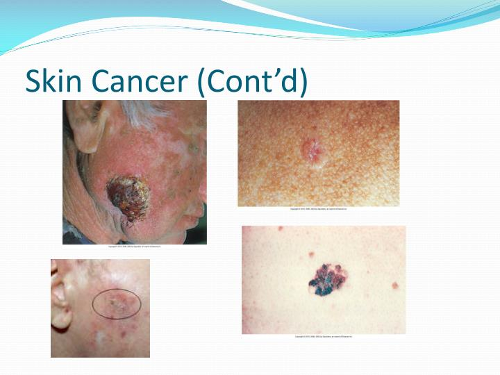 Skin Cancer (Cont'd)