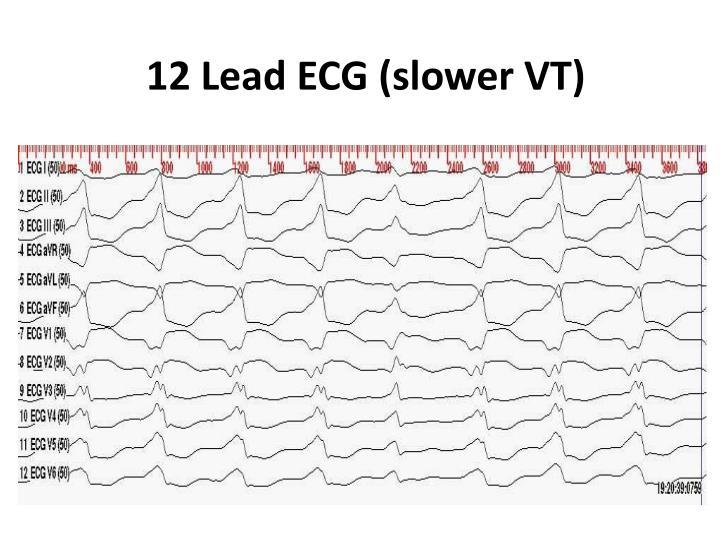 12 Lead ECG (slower VT)
