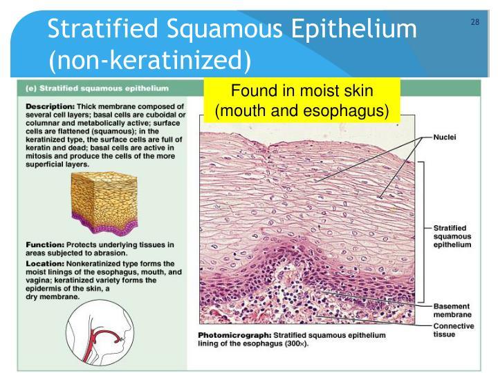 Stratified squamous keratinized epithelium labeled