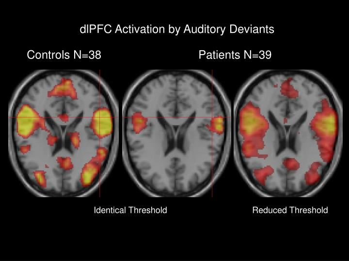 dlPFC Activation by Auditory Deviants