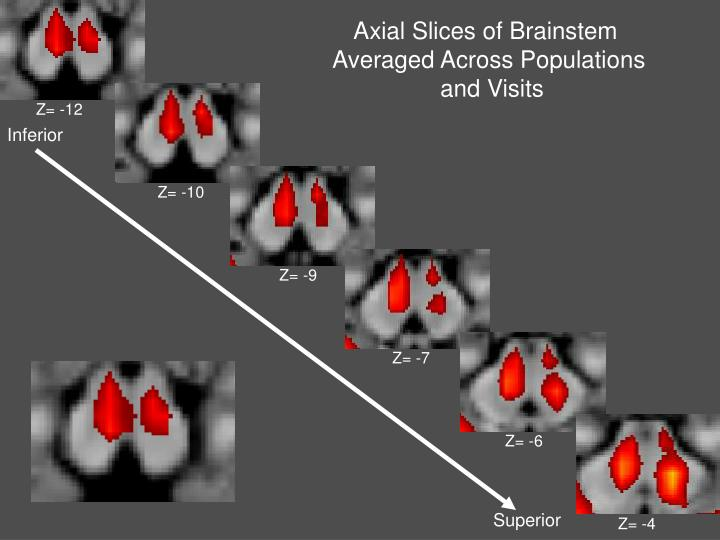 Axial Slices of Brainstem