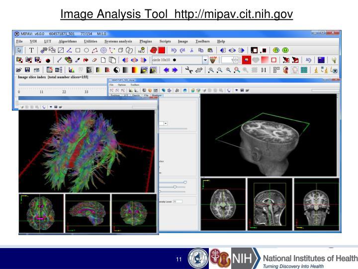 Image Analysis Tool  http://mipav.cit.nih.gov