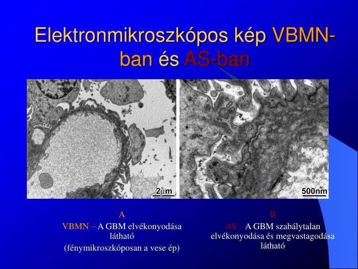 Elektronmikroszkópos kép