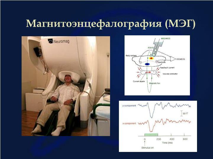 Магнитоэнцефалография (МЭГ)