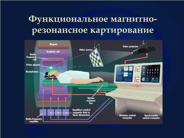 Функциональное магнитно-резонансное картирование
