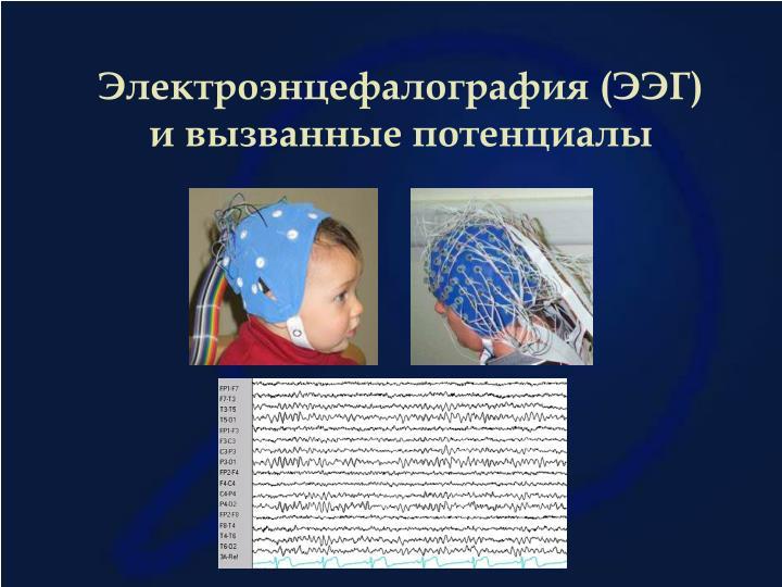 Электроэнцефалография (ЭЭГ) и вызванные потенциалы