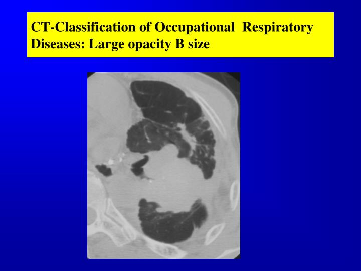CT-Classification of Occupational  Respiratory Diseases: Large opacity B size