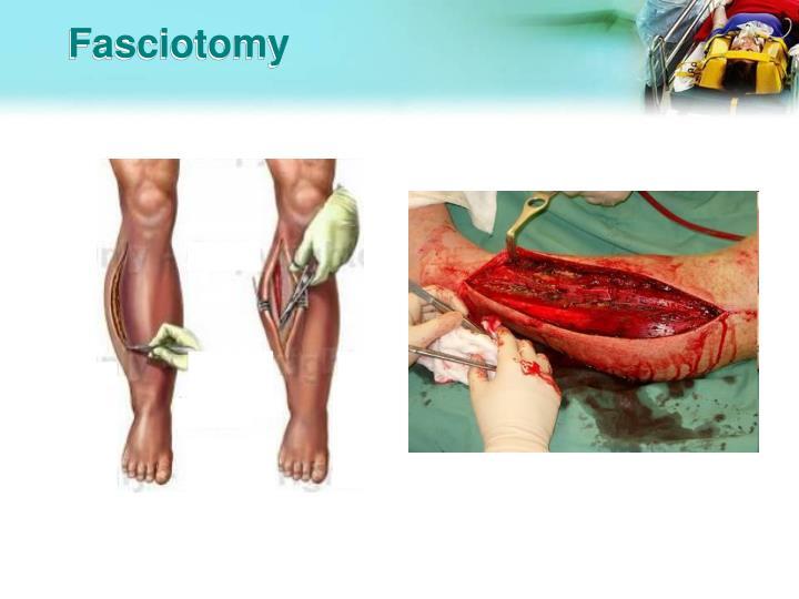 Fasciotomy