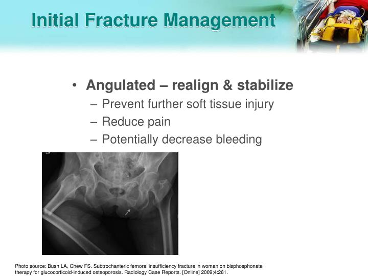 Initial Fracture Management