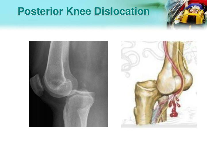 Posterior Knee Dislocation