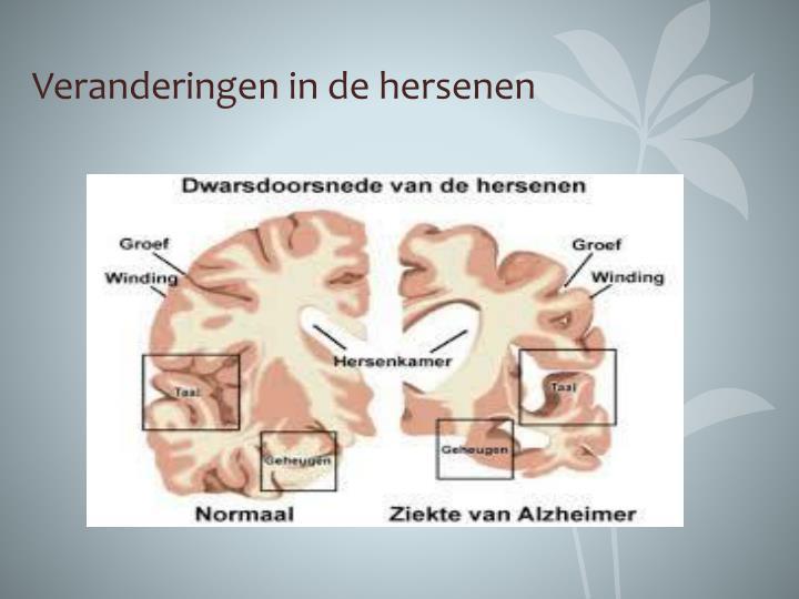 Veranderingen in de hersenen