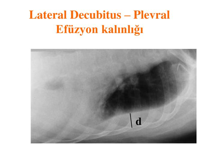 Lateral Decubitus – Plevral Efüzyon kalınlığı