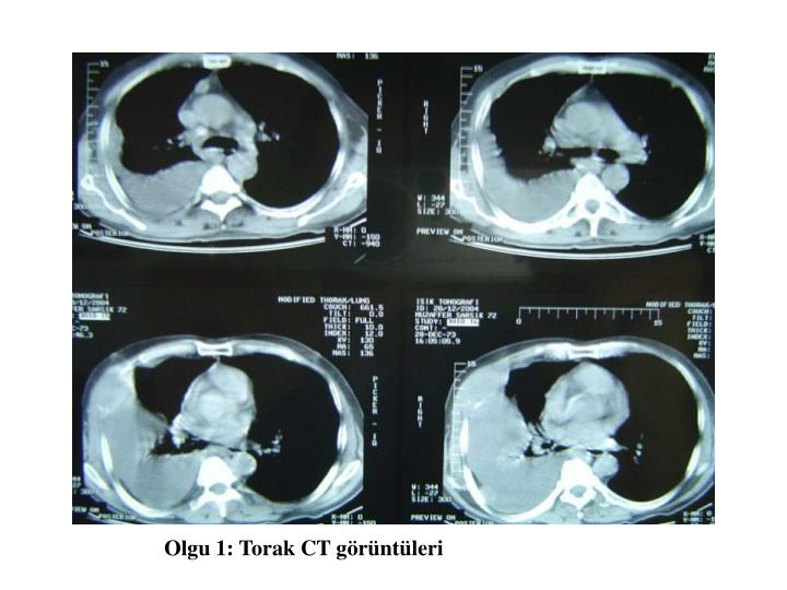 Olgu 1: Torak CT görüntüleri