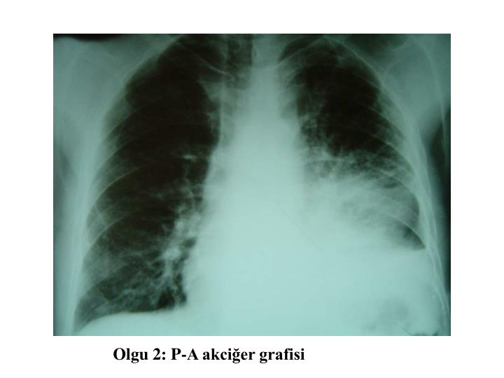 Olgu 2: P-A akciğer grafisi