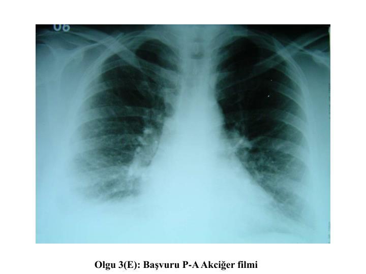 Olgu 3(E): Başvuru P-A Akciğer filmi