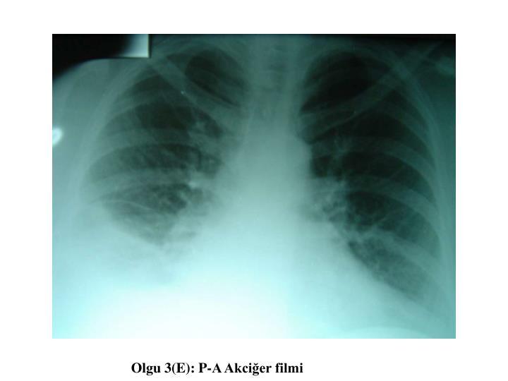 Olgu 3(E): P-A Akciğer filmi