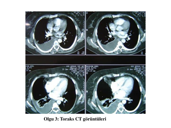 Olgu 3: Toraks CT görüntüleri
