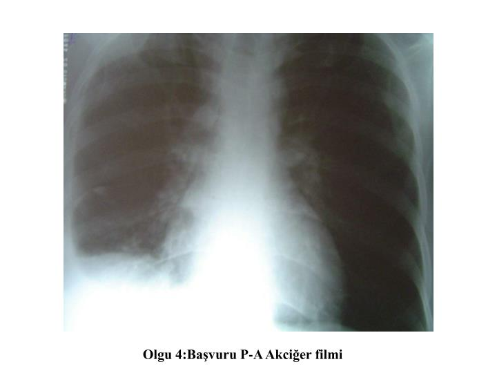 Olgu 4:Başvuru P-A Akciğer filmi