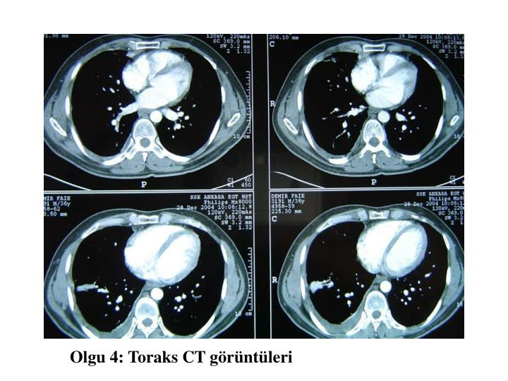 Olgu 4: Toraks CT görüntüleri