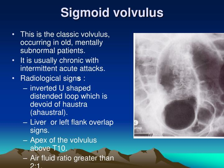 Sigmoid volvulus