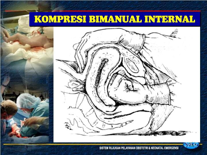 KOMPRESI BIMANUAL INTERNAL