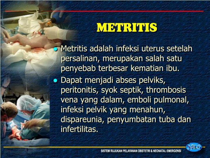 METRITIS