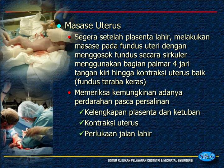 Masase Uterus