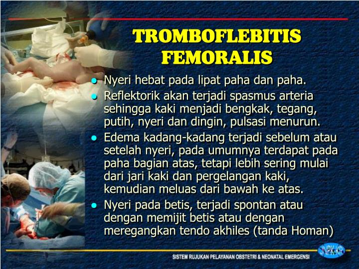 TROMBOFLEBITIS FEMORALIS