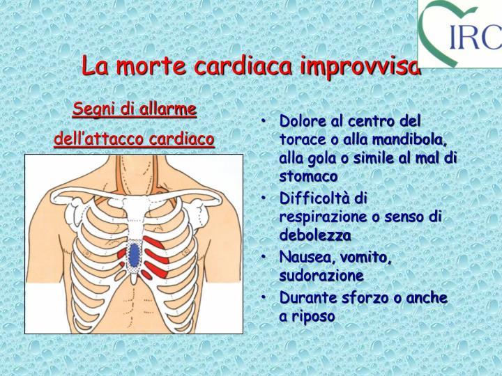 La morte cardiaca improvvisa