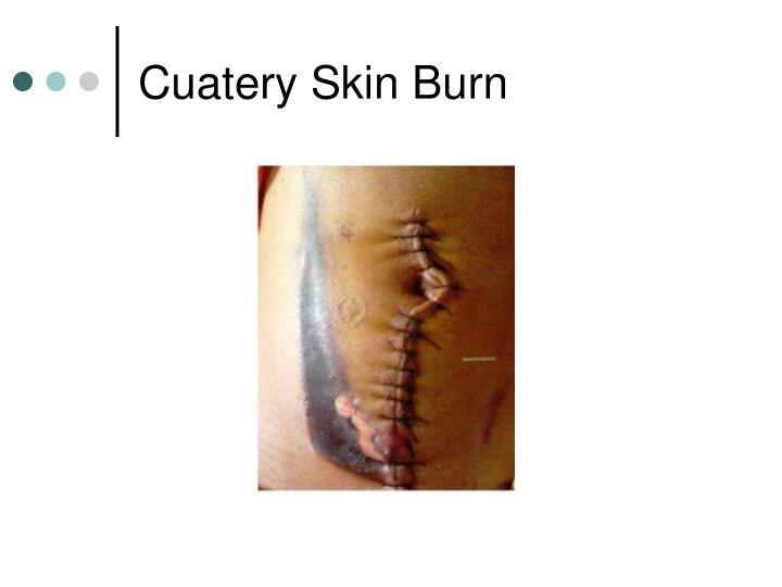 Cuatery Skin Burn