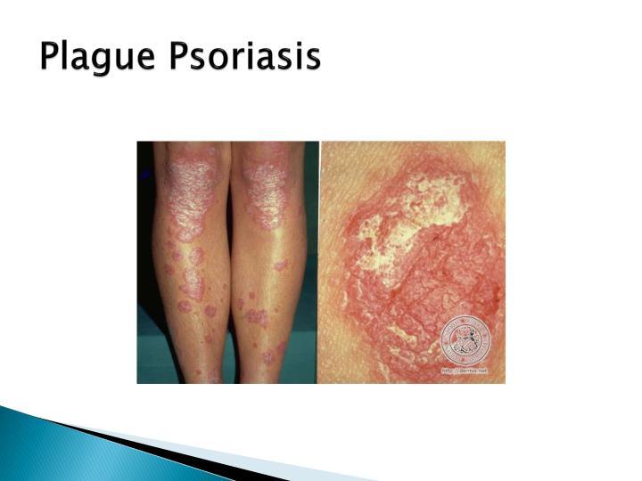Plague Psoriasis